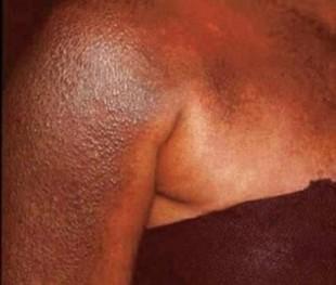 depigmentation